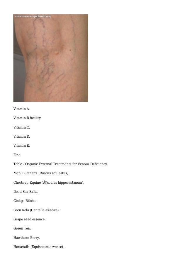 varicose veins vitamin deficiency