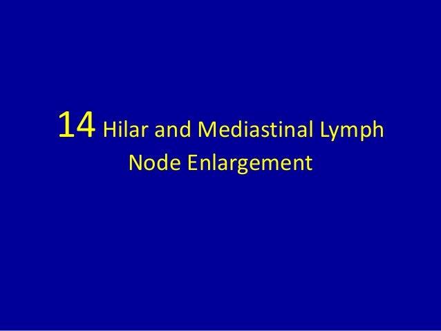 14 Hilar And Mediastinal Lymph Node Enlargement 1 638gcb1437205841