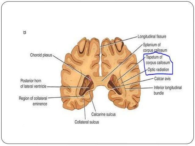 Ventricles