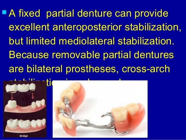 15 Introduction To Removable Partial Dentures
