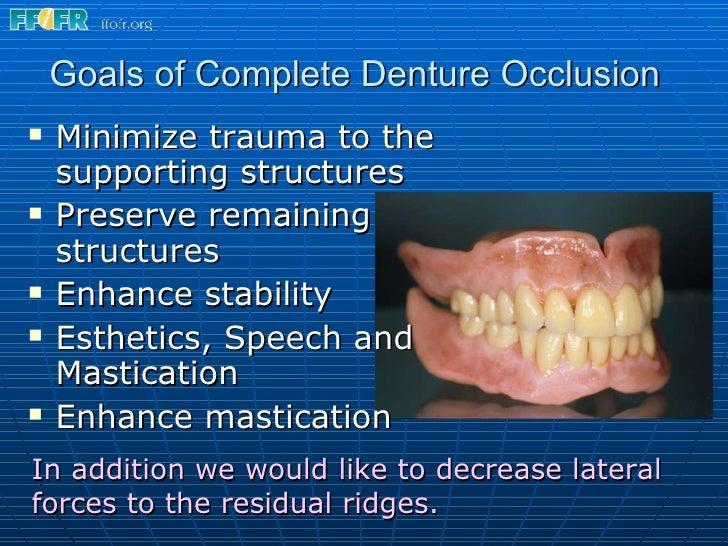 Occlusal schemes in complete denture.