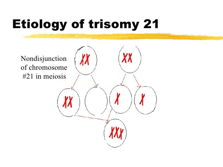 PPT - Chromosomal Abnormalities Errors of Meiosis ... |Nondisjunction Trisomy 21