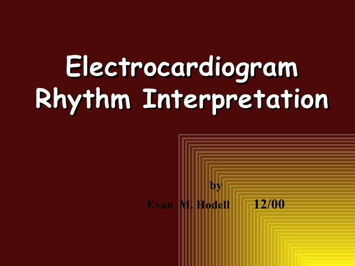 Electrocardiogram Rhythm Interpretation by Evan  M. Hodell 12/00