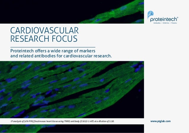 1Cardiovascular Research Focus www.ptglab.com CARDIOVASCULAR RESEARCH FOCUS www.ptglab.com Proteintech offers a wide range...