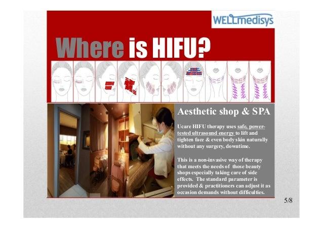 Ucare Skin Therapy HIFU