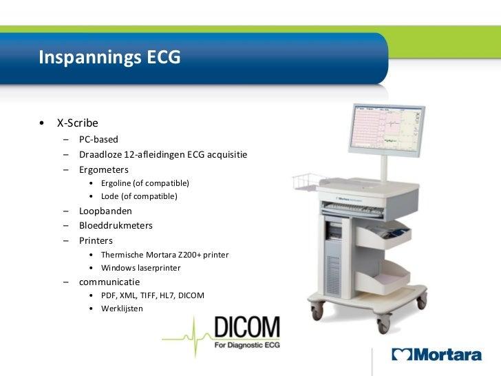 Digitale ECG transmissie en opslag