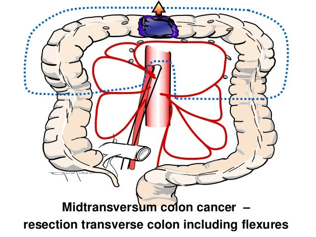 Standardization Of Cme For Transverse Colon Cancer