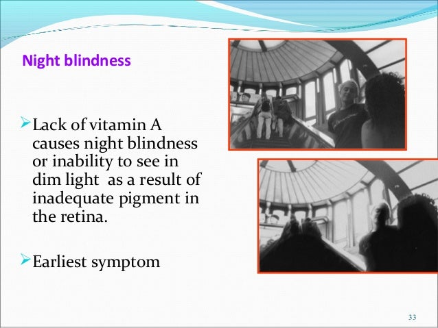 night blindness results from abnormalities in the Defects underlying congenital stationary night blindness (csnb)  bornschein- type of csnb results from a post-phototransduction defect and.