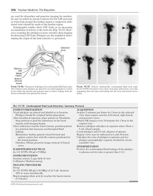 Cerebrospinal Fluid (CSF) Leak: Johns Hopkins Skull Base ...