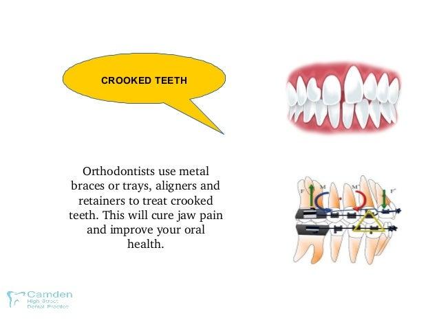 CROOKED TEETH Orthodontistsusemetal bracesortrays,alignersand retainerstotreatcrooked teeth.Thiswillcureja...