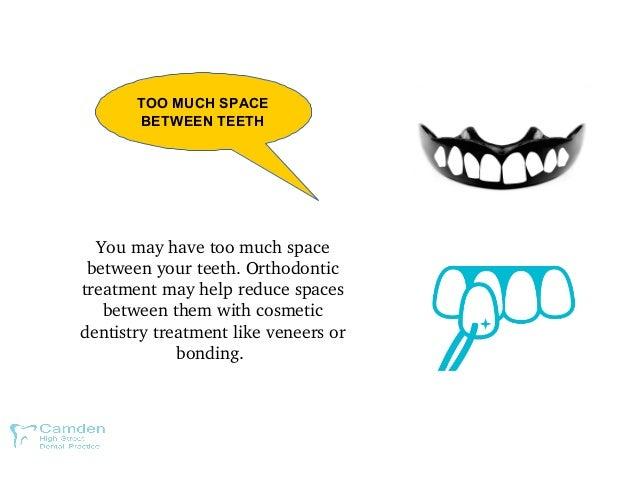 TOO MUCH SPACE BETWEEN TEETH Youmayhavetoomuchspace betweenyourteeth.Orthodontic treatmentmayhelpreducespace...