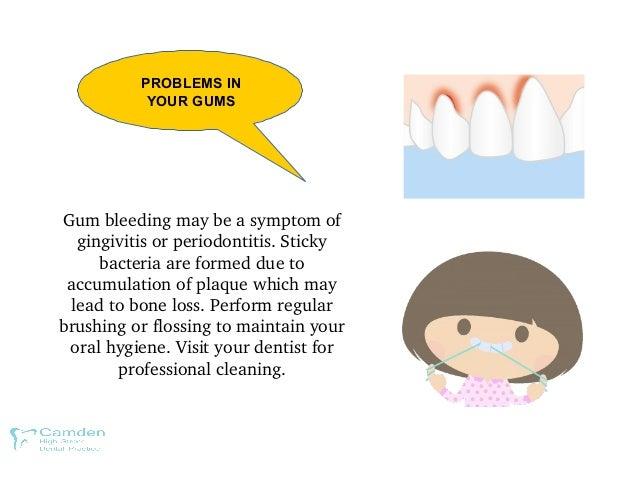 PROBLEMS IN YOUR GUMS Gumbleedingmaybeasymptomof gingivitisorperiodontitis.Sticky bacteriaareformeddueto a...