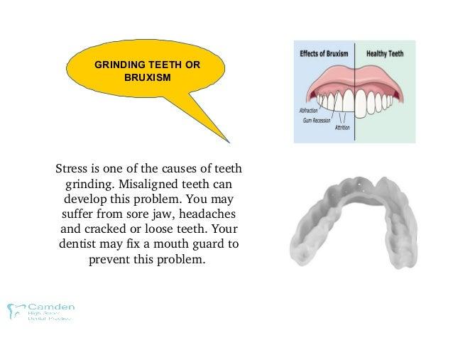 GRINDING TEETH OR BRUXISM Stressisoneofthecausesofteeth grinding.Misalignedteethcan developthisproblem.You...
