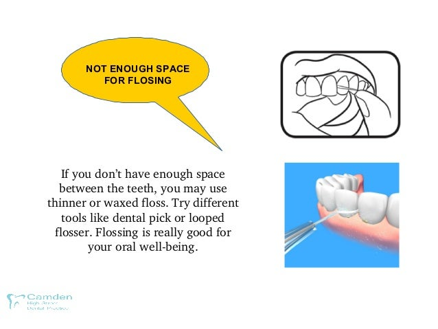 NOT ENOUGH SPACE FOR FLOSING Ifyoudon'thaveenoughspace betweentheteeth,youmayuse thinnerorwaxedfloss.Tryd...