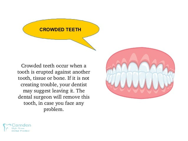 Crowdedteethoccurwhena toothiseruptedagainstanother tooth,tissueorbone.Ifitisnot creatingtrouble,your...
