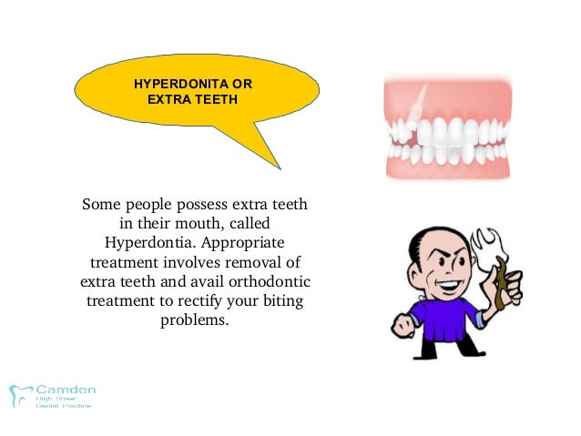 HYPERDONITA OR EXTRA TEETH Somepeoplepossessextrateeth intheirmouth,called Hyperdontia.Appropriate treatmentin...