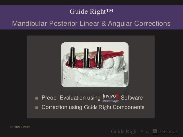 Guide Right™Mandibular Posterior Linear & Angular Corrections                                        Invivo5              ...