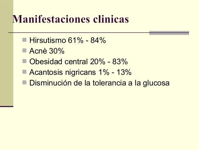 sindrome ovario poliquistico