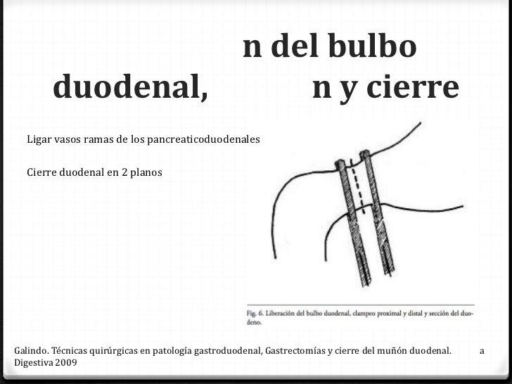 n del                                      n menorGalindo. Técnicas quirúrgicas en patología gastroduodenal, Gastrectomías...