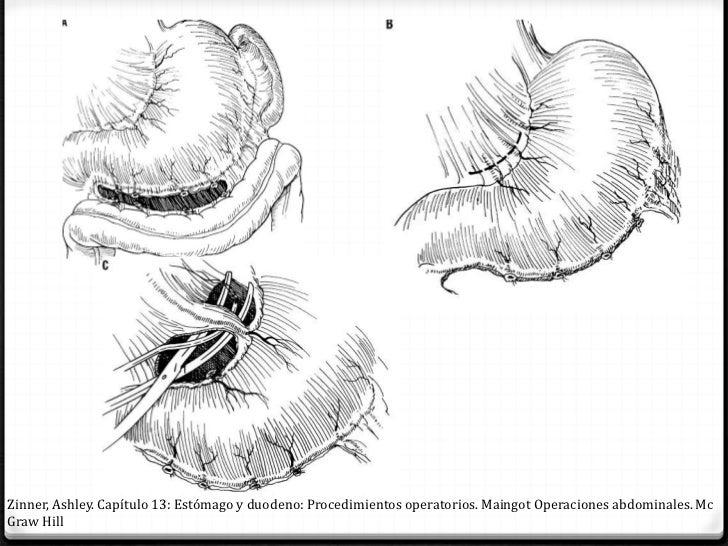 Zinner, Ashley. Capítulo 13: Estómago y duodeno: Procedimientos operatorios. Maingot Operaciones abdominales. McGraw Hill