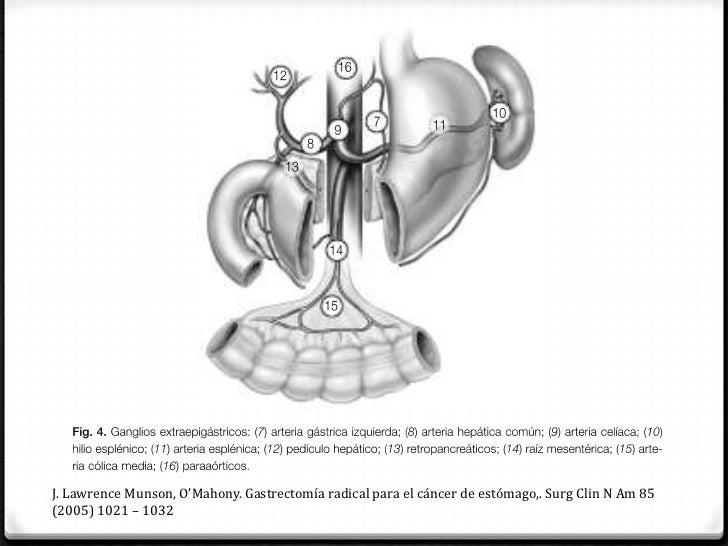 Disección del duodenoArteriagastroepiploicaderecha                                                              Arteria gá...