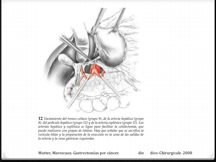 Mutter, Marescaux. Gastrectomías por lesiones benignas.   die   dico-Chirurgicale. 2008