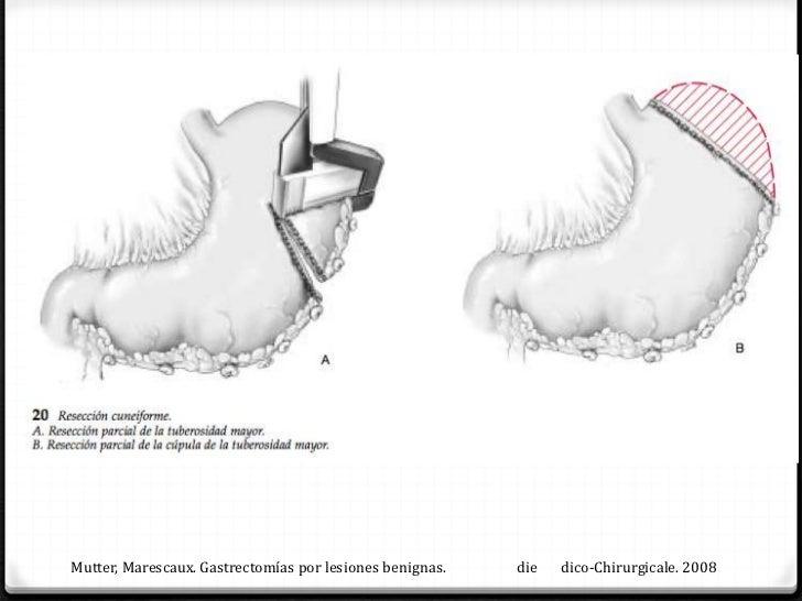 GASTRECTOMIA PEAN-            BILROTH I 0        n distal no muy amplia 0 E mago por su curvatura mayor llegue sin        ...