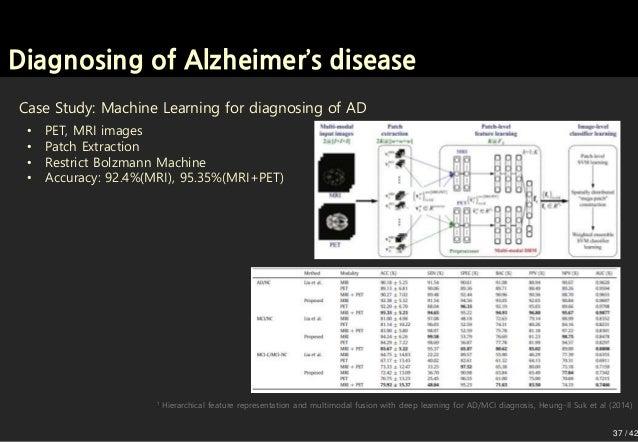 Convolutional Neural Network for Alzheimer's disease