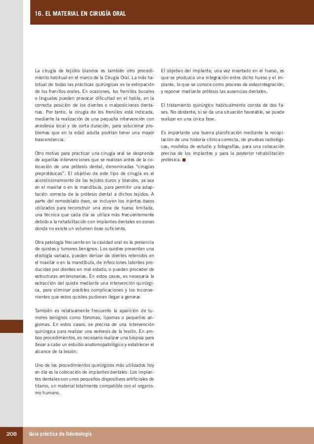 Guía práctica de Odontología208 16. EL MATERIAL EN CIRUGÍA ORAL El objetivo del implante, una vez insertado en el hueso, e...