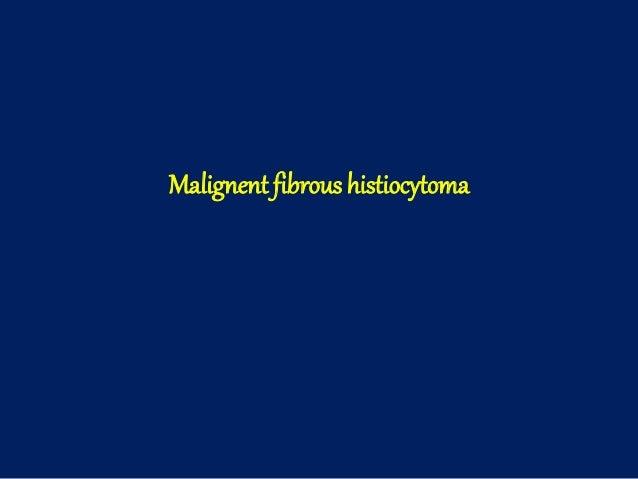 Malignent fibrous histiocytoma