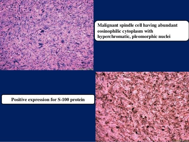 Malignant spindle cell having abundant eosinophilic cytoplasm with hyperchromatic, pleomorphic nuclei Positive expression ...