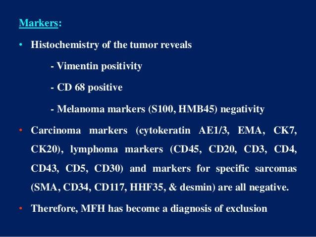 Markers: • Histochemistry of the tumor reveals - Vimentin positivity - CD 68 positive - Melanoma markers (S100, HMB45) neg...
