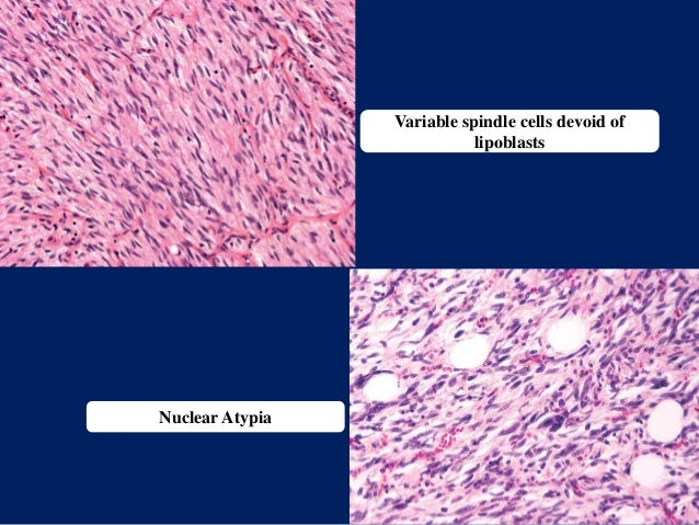 Variable spindle cells devoid of lipoblasts Nuclear Atypia