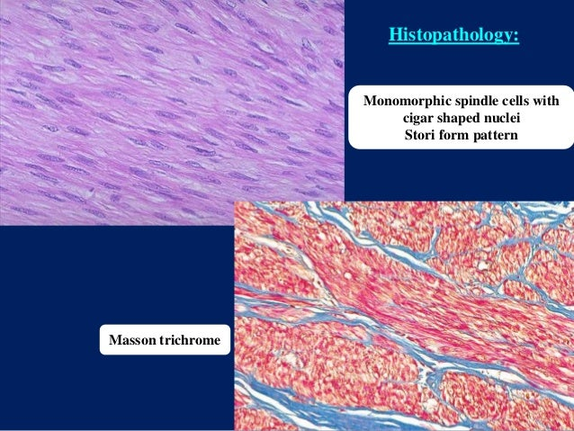 Monomorphic spindle cells with cigar shaped nuclei Stori form pattern Masson trichrome Histopathology: