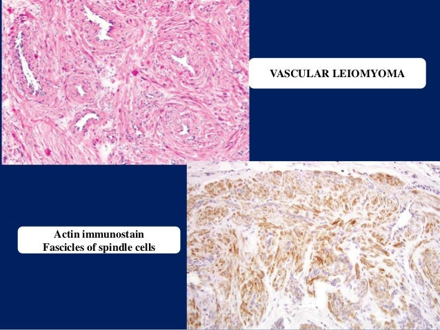 VASCULAR LEIOMYOMA Actin immunostain Fascicles of spindle cells