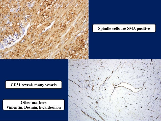Spindle cells are SMA positive CD31 reveals many vessels Other markers Vimentin, Desmin, h-caldesmon