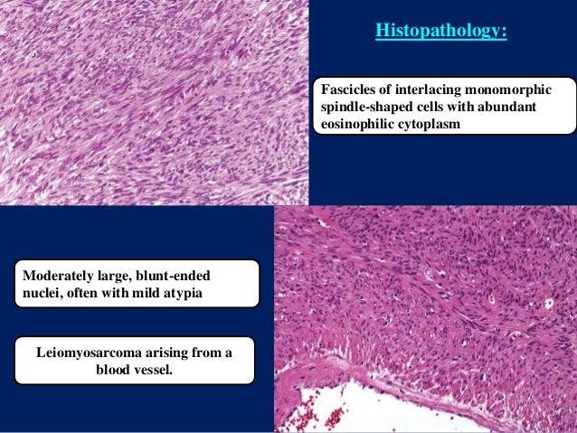 Fascicles of interlacing monomorphic spindle-shaped cells with abundant eosinophilic cytoplasm Moderately large, blunt-end...