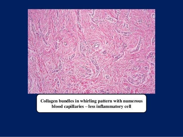 Collagen bundles in whirling pattern with numerous blood capillaries – less inflammatory cell