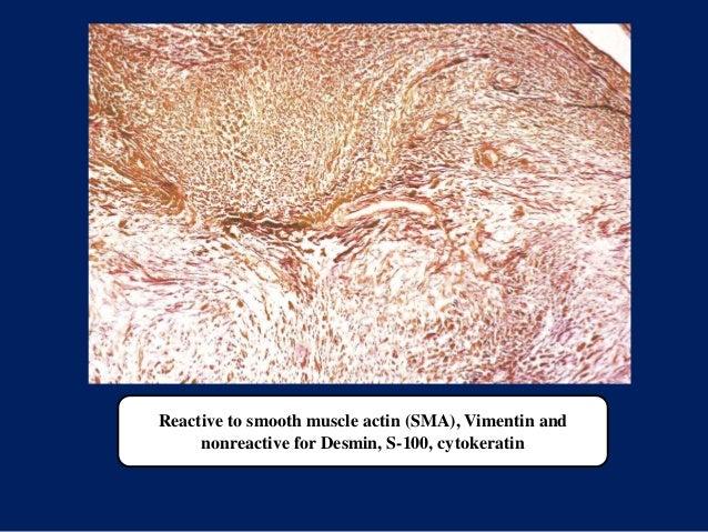 Reactive to smooth muscle actin (SMA), Vimentin and nonreactive for Desmin, S-100, cytokeratin
