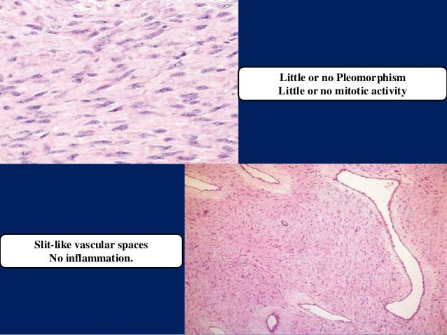 Little or no Pleomorphism Little or no mitotic activity Slit-like vascular spaces No inflammation.
