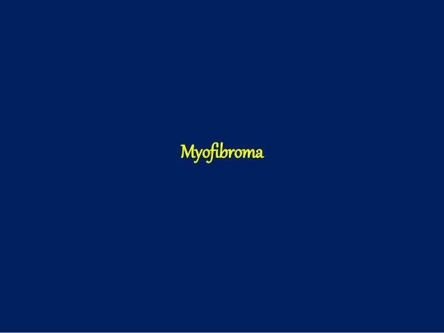 Myofibroma