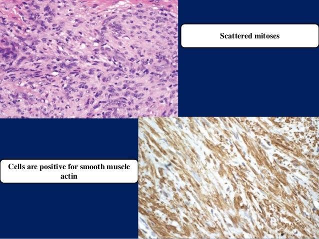 Scattered mitoses Cells are positive for smooth muscle actin