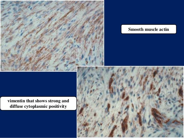 Smooth muscle actin vimentin that shows strong and diffuse cytoplasmic positivity