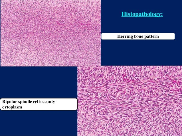 Herring bone pattern Histopathology: Bipolar spindle cells scanty cytoplasm