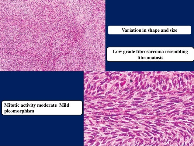 Variation in shape and size Mitotic activity moderate Mild pleomorphism Low grade fibrosarcoma resembling fibromatosis