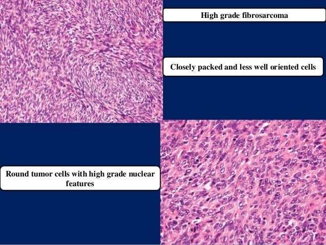 High grade fibrosarcoma Closely packed and less well oriented cells Round tumor cells with high grade nuclear features