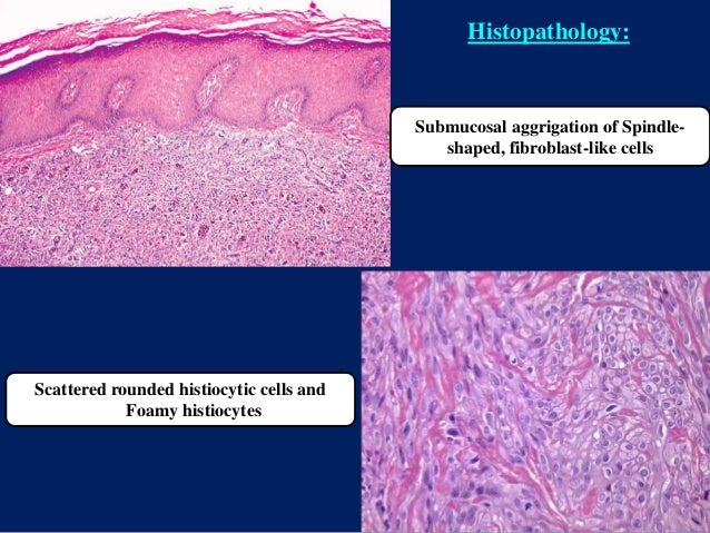 Submucosal aggrigation of Spindle- shaped, fibroblast-like cells Scattered rounded histiocytic cells and Foamy histiocytes...