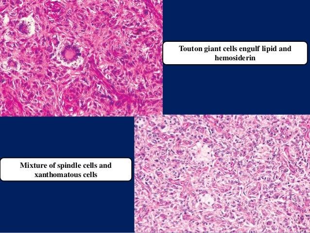Touton giant cells engulf lipid and hemosiderin Mixture of spindle cells and xanthomatous cells