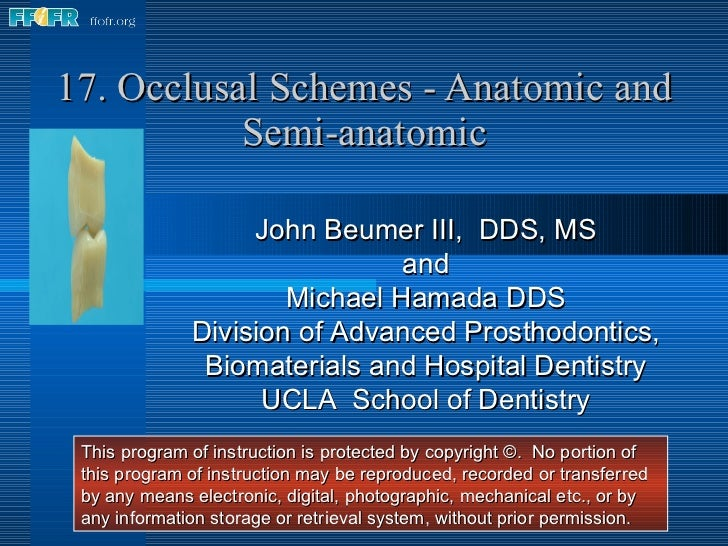 17. Occlusal Schemes - Anatomic and Semi-anatomic John Beumer III,  DDS, MS and Michael Hamada DDS Division of Advanced Pr...