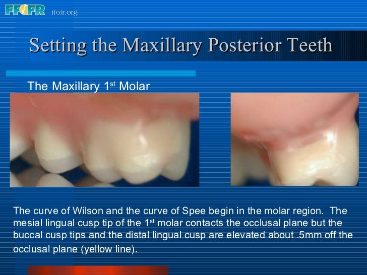 Setting the Maxillary Posterior Teeth The curve of Wilson and the curve of Spee begin in the molar region.  The mesial lin...